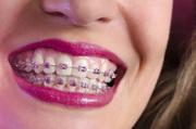 Брекеты в Одессе 6290 грн. Лучший способ чтобы выровнять зубы.
